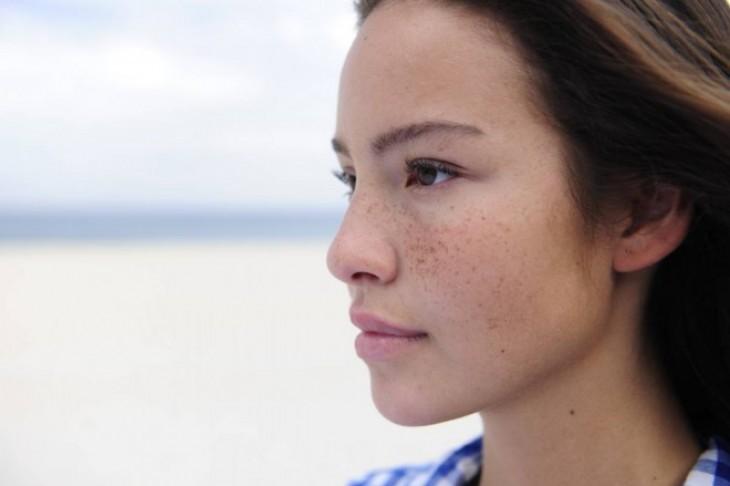 Fleke na koži – kako ukloniti hiperpigmentacije