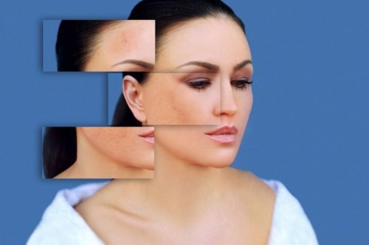 Najefikasniji načini za uklanjanje fleka sa lica