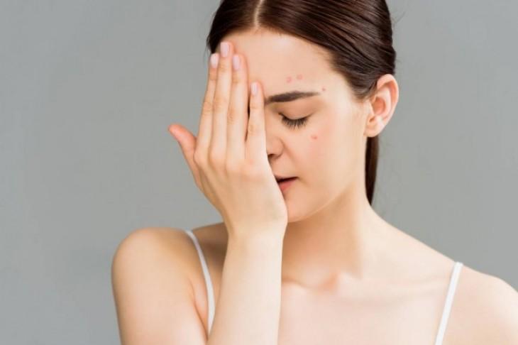Adekvatnom negom do čistog lica – efikasne metode za lečenje akni