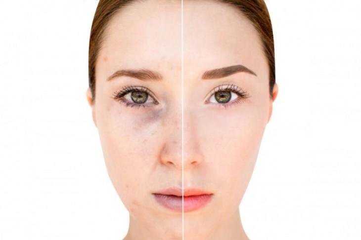 Jednostavno rešenje za otklanjanje fleka sa lica